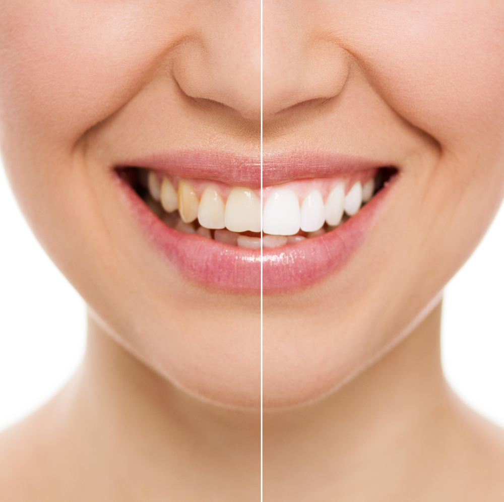 3 Reasons To Choose Professional Teeth Whitening Bigelow Family