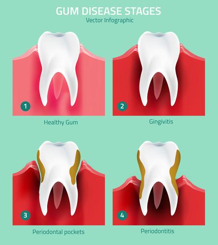 periodontal care