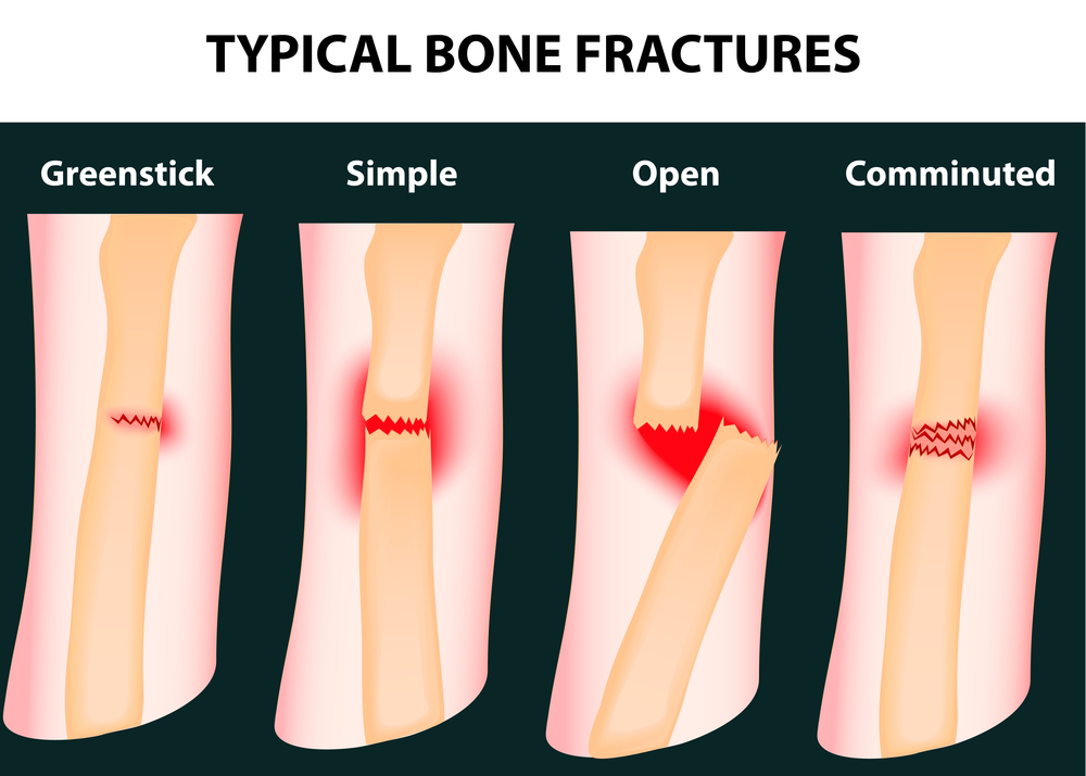A Focus On Orthopedic Surgery How Long Do Broken Bones Take To Heal