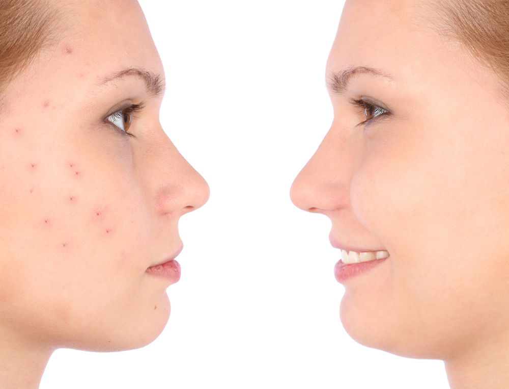 Rosacea Vs. Acne: How to Tell the Difference - Derm One ...