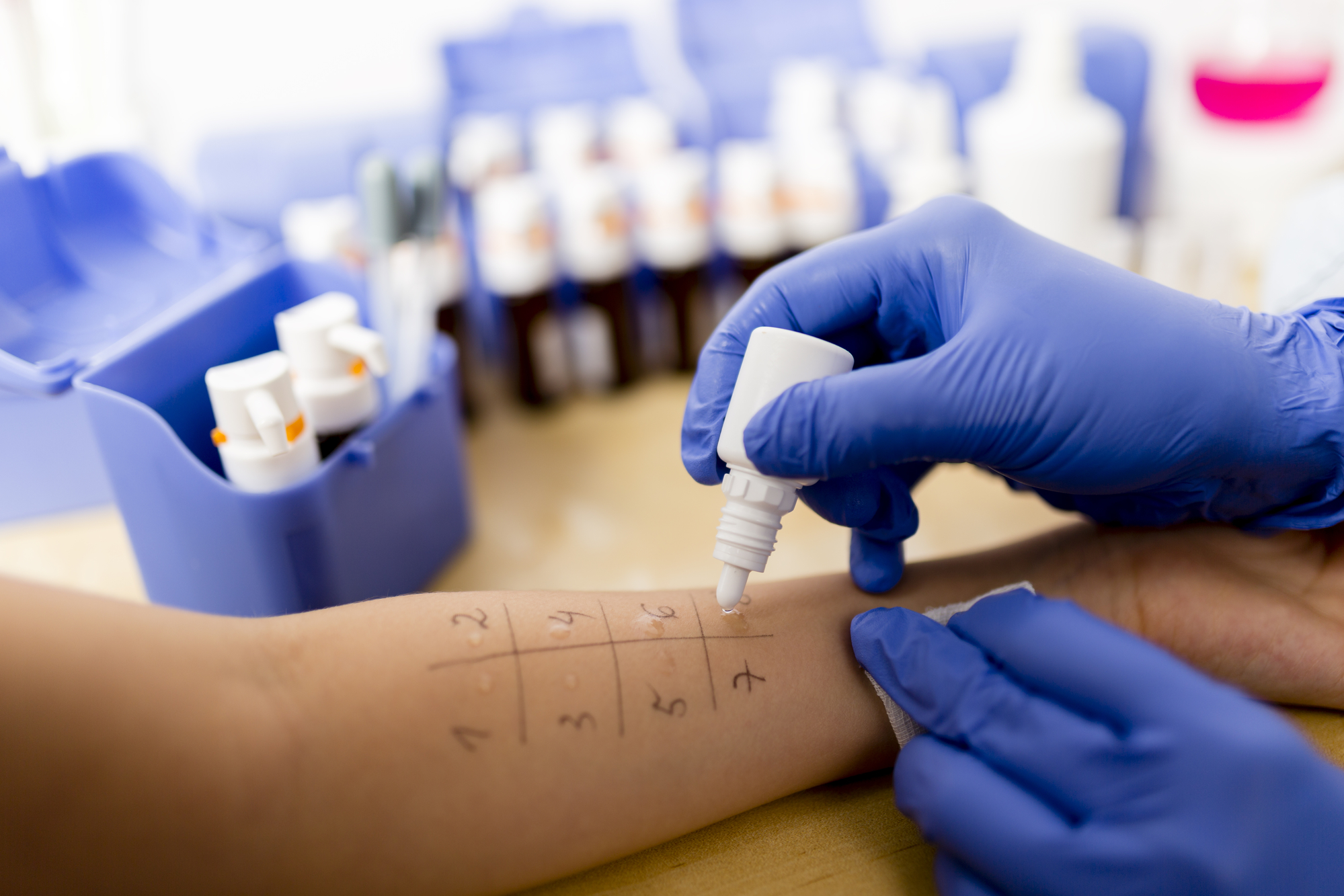Allergy Evaluation