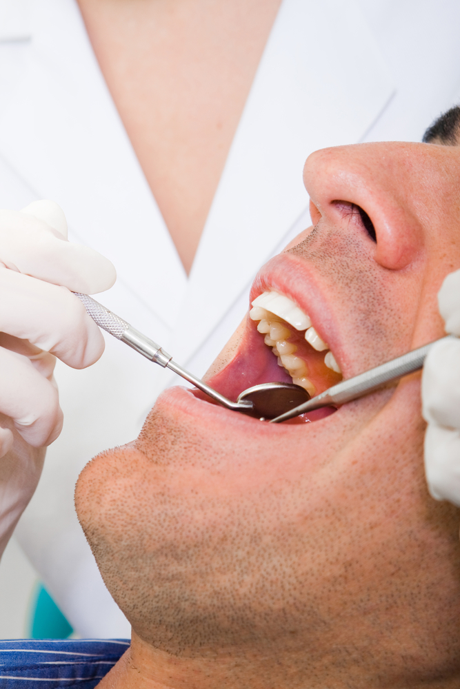 Family Dentist Explains the Different Stages of Tooth Decay - PdC