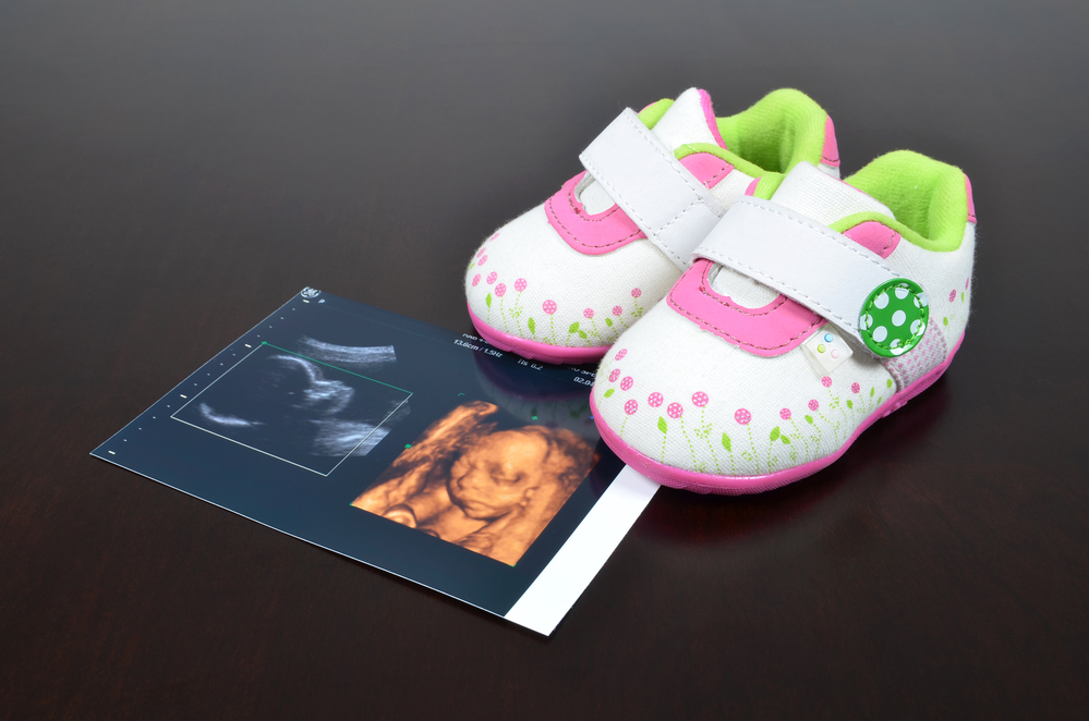 A Pregnancy Clinic's Guide to 4D Obstetric Ultrasounds