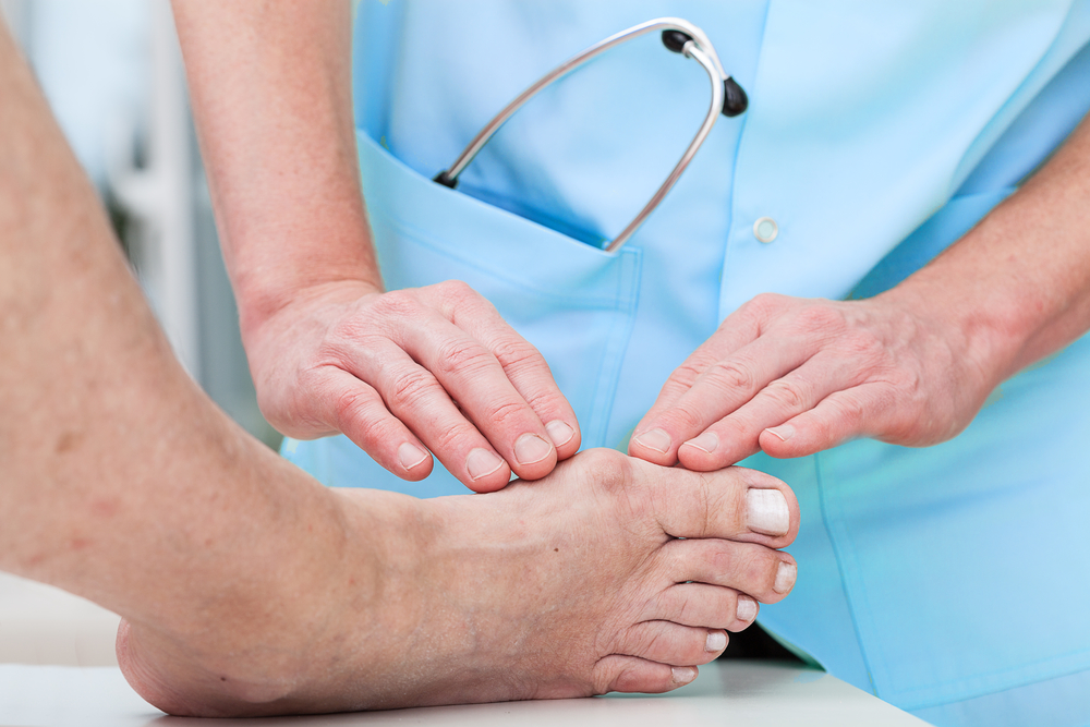 bunions-new-york-foot-experts