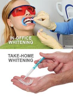 teeth whitening Ashtabula OH