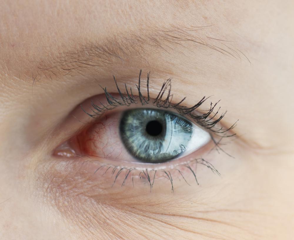 eye doctors