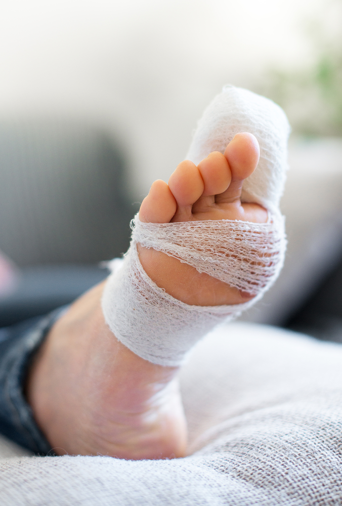 Dealing With an Ingrown Toenail? When to Seek Medical Attention ...