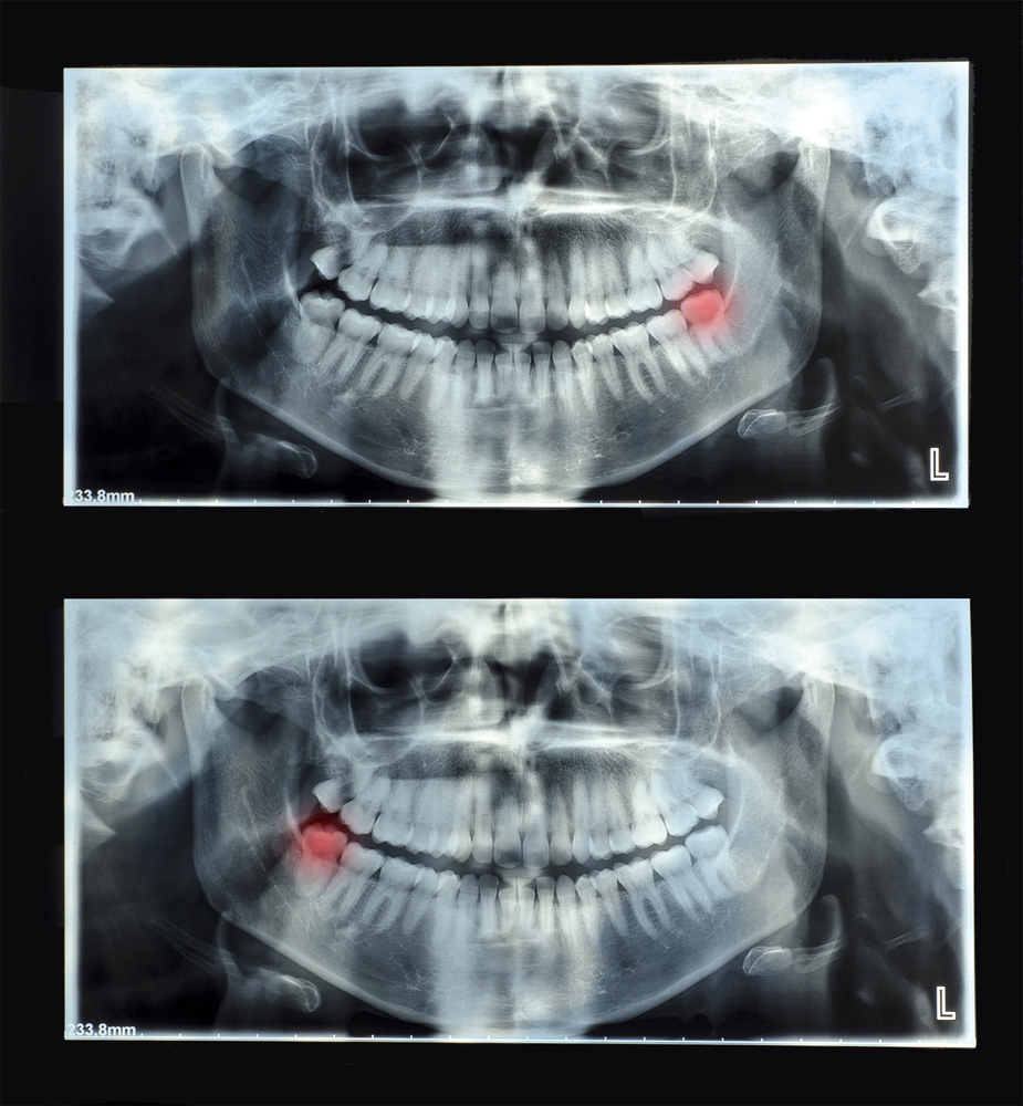 Do I Need to Have My Wisdom Teeth Removed? - Helmbrecht Dental