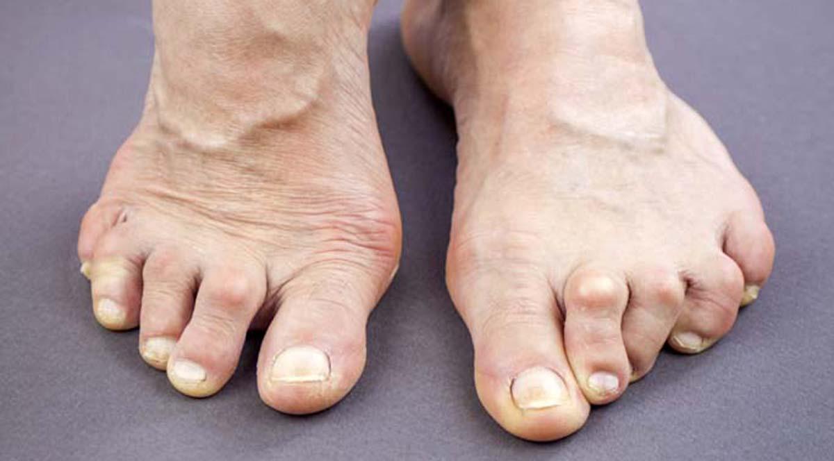 Hammer Toe Is Progressive Podiatrists