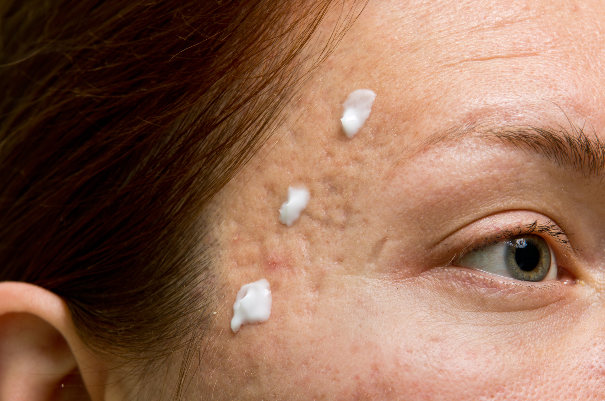 Tretinoin side effects