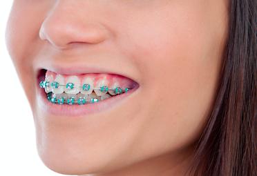 hidden braces