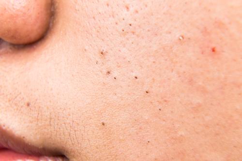 a dermatologist explains how to distinguish between blackheads sebaceous filaments pure skin. Black Bedroom Furniture Sets. Home Design Ideas
