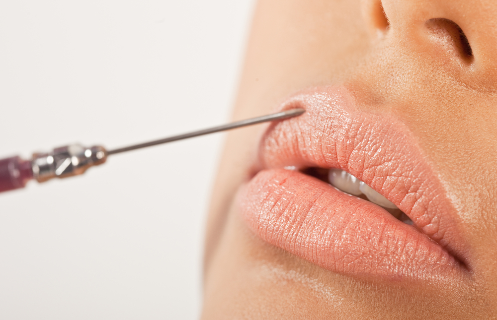 What to Expect From the Lip Injection Process - Dolce