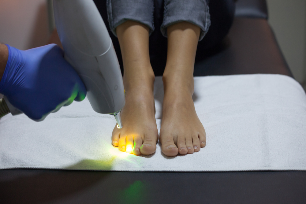 How Laser Treatment Helps Treat Nail Fungus - Laser Center of ...