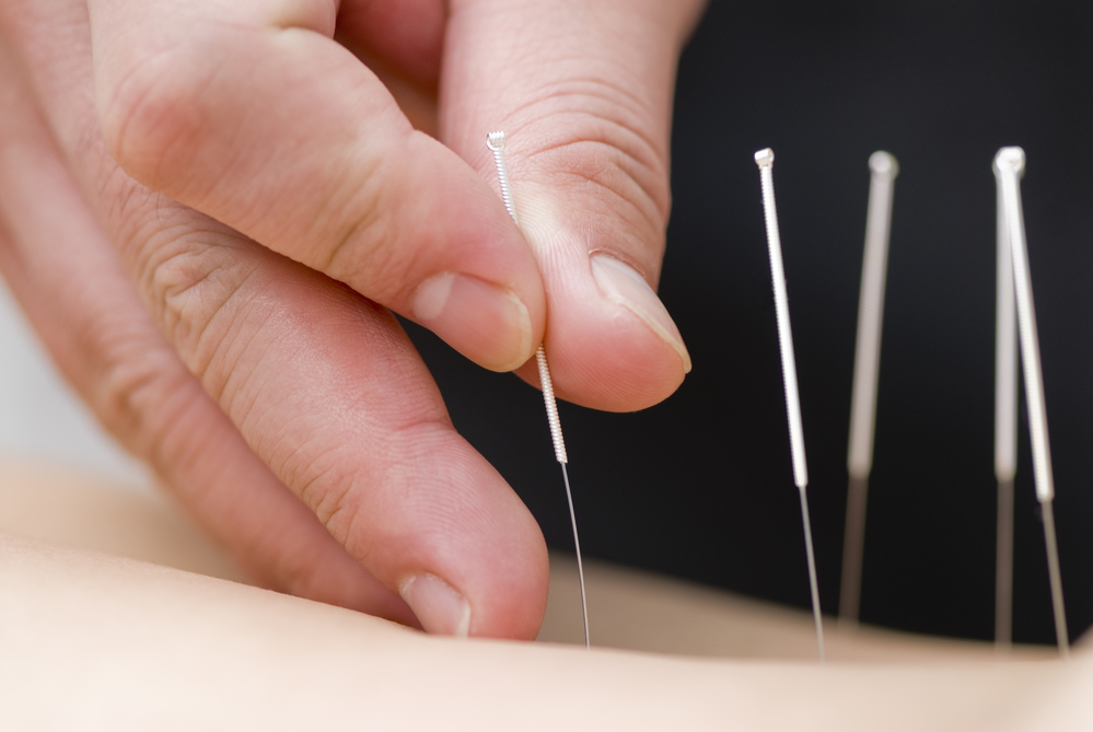 acupuncture for mood disorders