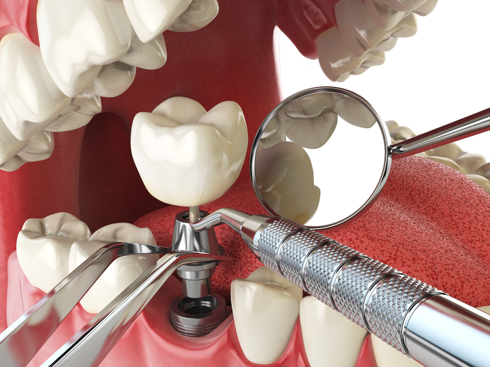 Something is. Oral surgery tooth extraction cost