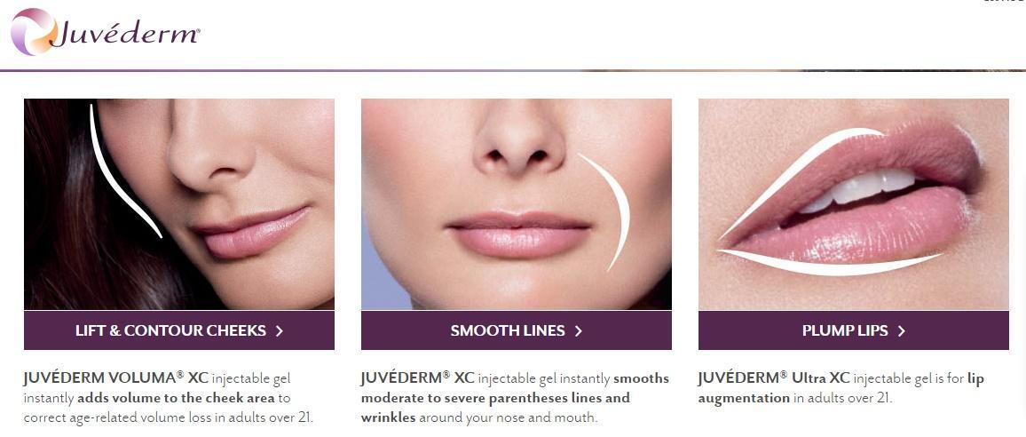 Bye Bye smile lines and lip lines! JUVÉDERM® dermal filler