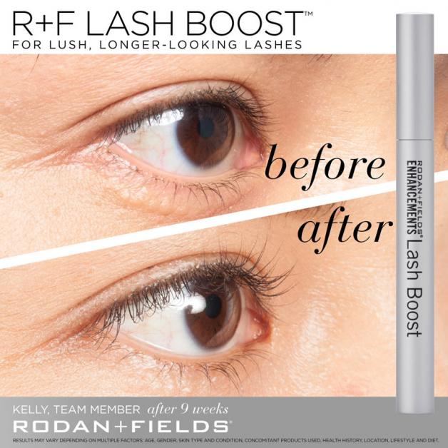 d7b189136bc Rodan+Fields Lash Boost - Darr Dentistry - Thomasville | NearSay