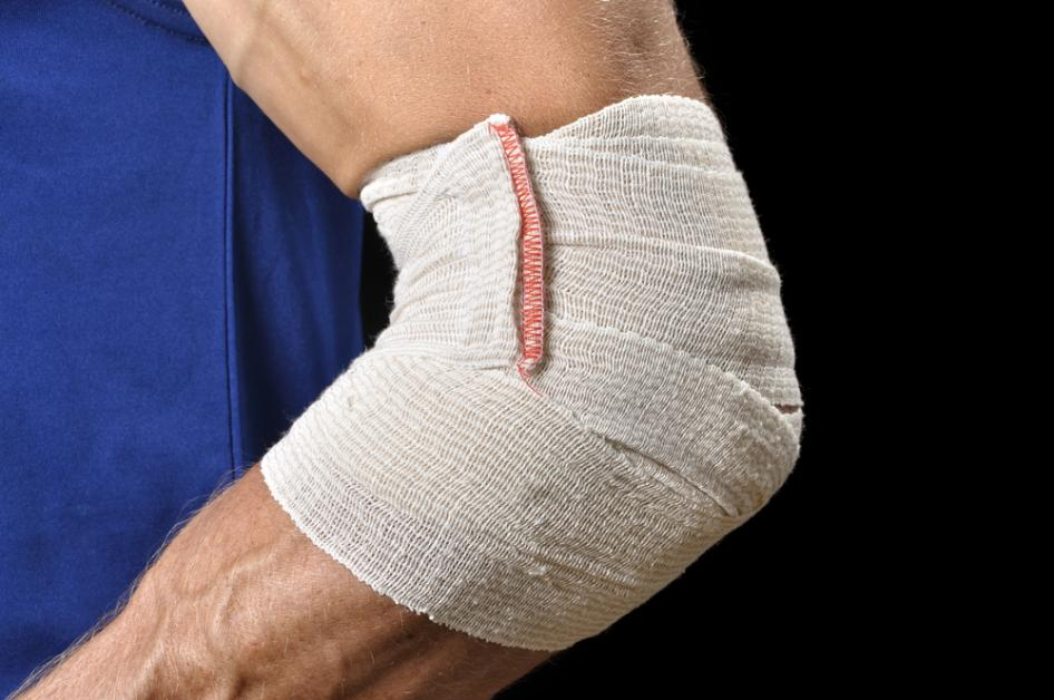 How Acupuncture Can Treat Tennis Elbow - Empire ...