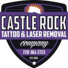 Castle Rock Tattoo and Laser Removal, Tattoo Removal, Tattoo Shops, Castle Rock, Colorado
