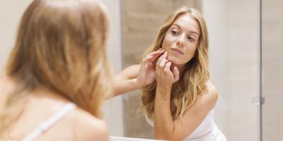 3 Causes of Acne You May Be Overlooking, Brookhaven, New York