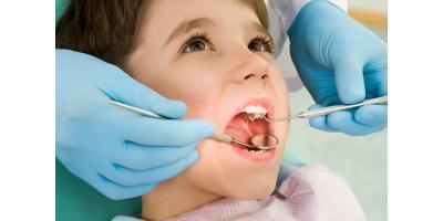 CDC Says More Kids Need Dental Sealants, North Branch, Minnesota