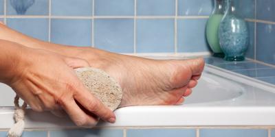 3 Remedies for Dry Heels , Cincinnati, Ohio