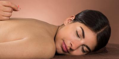 4 Answers to FAQ About Acupuncture , Anchorage, Alaska