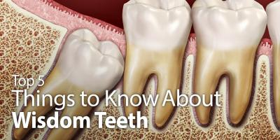 Top 5 Things to Know about Wisdom Teeth, Montgomery, Ohio