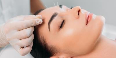 5 Popular Acupuncture Myths & the Truth Behind Them, Montvale, New Jersey