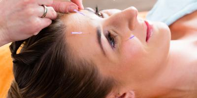 4 Benefits of Acupuncture for Pain Relief & Wellness, Forest Park, Ohio