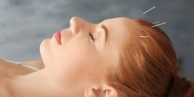 Is Acupuncture Painful? Here Are the Facts You Should Know, Manhattan, New York