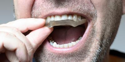 4 Signs You Need to Visit a Dental Lab for a Mouth Guard, Ewa, Hawaii