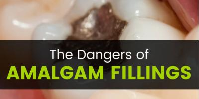 The Dangers of Amalgam Fillings, Manhattan, New York