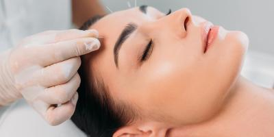 3 Myths About Acupuncture Debunked, Anchorage, Alaska