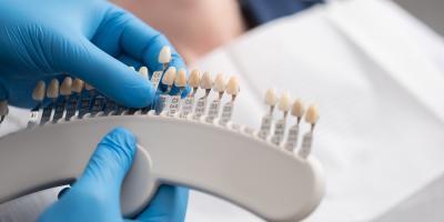 How to Choose Between Dental Implants & Bridges, Anchorage, Alaska