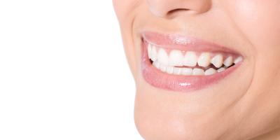What Should You Do if Your Tooth Falls Out? A Dentist Explains, Anchorage, Alaska