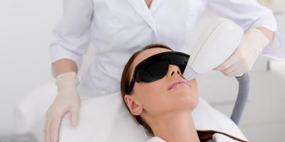 What Can Laser Treatment Do for Acne Scars?, Anchorage, Alaska