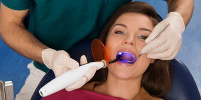 Everything You've Ever Wanted to Know About Professional Teeth Whitening, Anchorage, Alaska