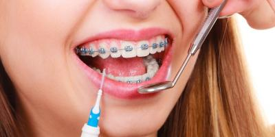 5 Telltale Signs You Need Braces, Avon, Ohio