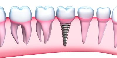 "Dental Implants: What You Should Know About This ""Third Set"" of Teeth, Baraboo, Wisconsin"