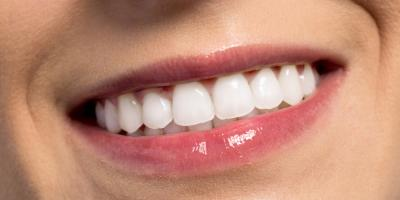 3 FAQs on Cosmetic Dentistry Explained, Waterloo, Illinois