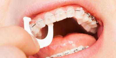 Got Braces? Family Dentists Share 3 Tips for Brushing & Flossing, Ewa, Hawaii