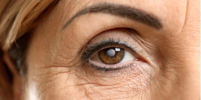 Eye Care Professional Offers 4 Ways to Prevent Cataracts, Bullhead City, Arizona