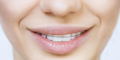 Understand Your Orthodontic Options: 3 Retainers Styles to Consider, Avon, Ohio