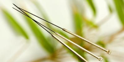 4 FAQs About Dry Needling, Somerset, Kentucky