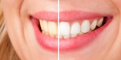Teeth Whitening Experts Discuss 3 Common Ways You Could Be Staining Your Teeth, Springdale, Ohio