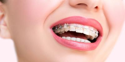 3 Major Benefits of Getting Clear Braces, La Crosse, Wisconsin