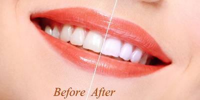 How to Find the Right Cosmetic Dentist, Perry, Georgia