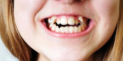 The Right Time for an Orthodontic Check-Up: No Later than Age 7, Brunswick, Ohio